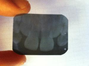 Biodescodificación dental caso 1
